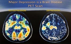 Depression is debilitating.